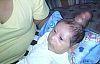 Boynuzlu doğan bebek tıp dünyasını şaşırttı