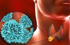 Tiroid Kanseri Tedavisinde Bilinmeyenler